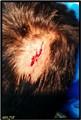 My Head Injury May 2014